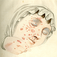 Fisher's illustration of a patient with smallpox
